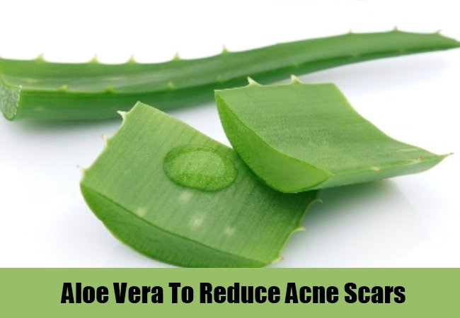Aloe-Vera-To-Reduce-Acne-Scars