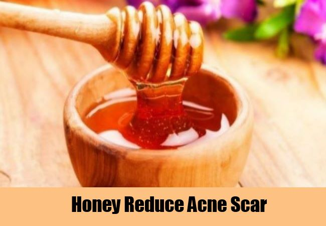 Honey-Reduce-Acne-Scar