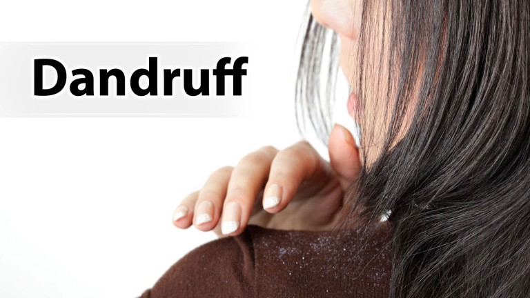 Top 10 Home Remedies to Get Rid of Dandruff