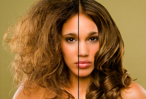 Top Home Remedies for Hair Care that Actually Work