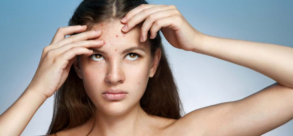 how-to-get-rid-of-sudden-breakouts