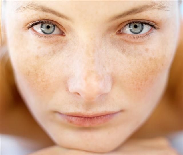 remove-sun-spots-or-age-spots-guaranteed-with-this-2-ingredient-simple-diy