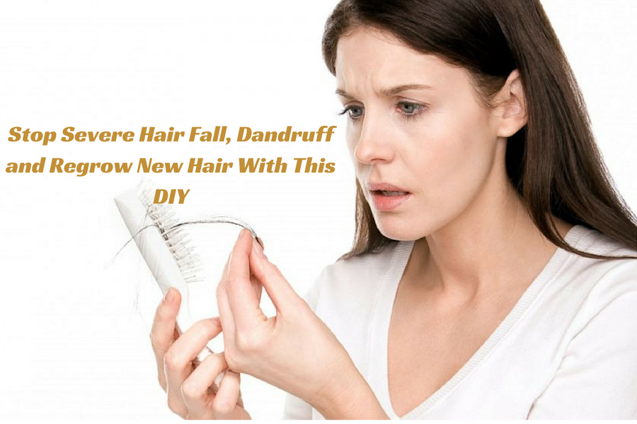Stop Severe Hair Fall, Dandruff and Regrow New Hair With This DIY