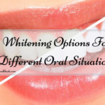 Whitening Options For Different Oral Situations