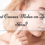 What Causes Moles on Your Skin?